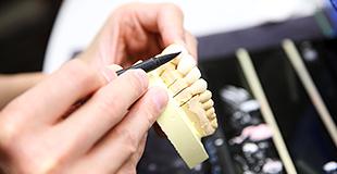 歯科技工士のイメージ
